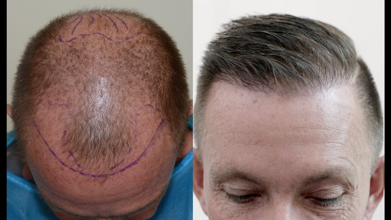 Every Detailed Aspect About Hair Transplantation