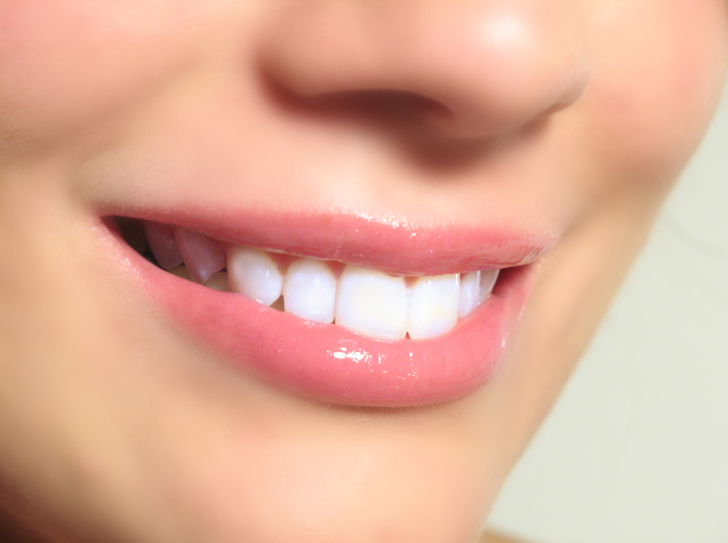 Teeth Whitening South Yarra Best Oral Treatment