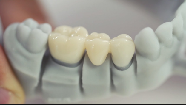 Why Should You Use Dental Crowns?