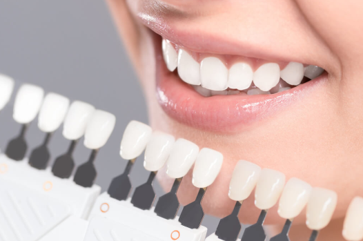 Clinics For Teeth Whitening In Leeds