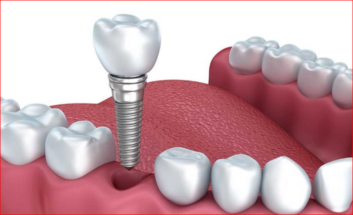 Dental Implant Marketing Strategy