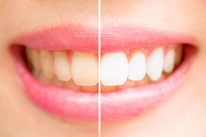 Teeth whiteningdentist Charlotte