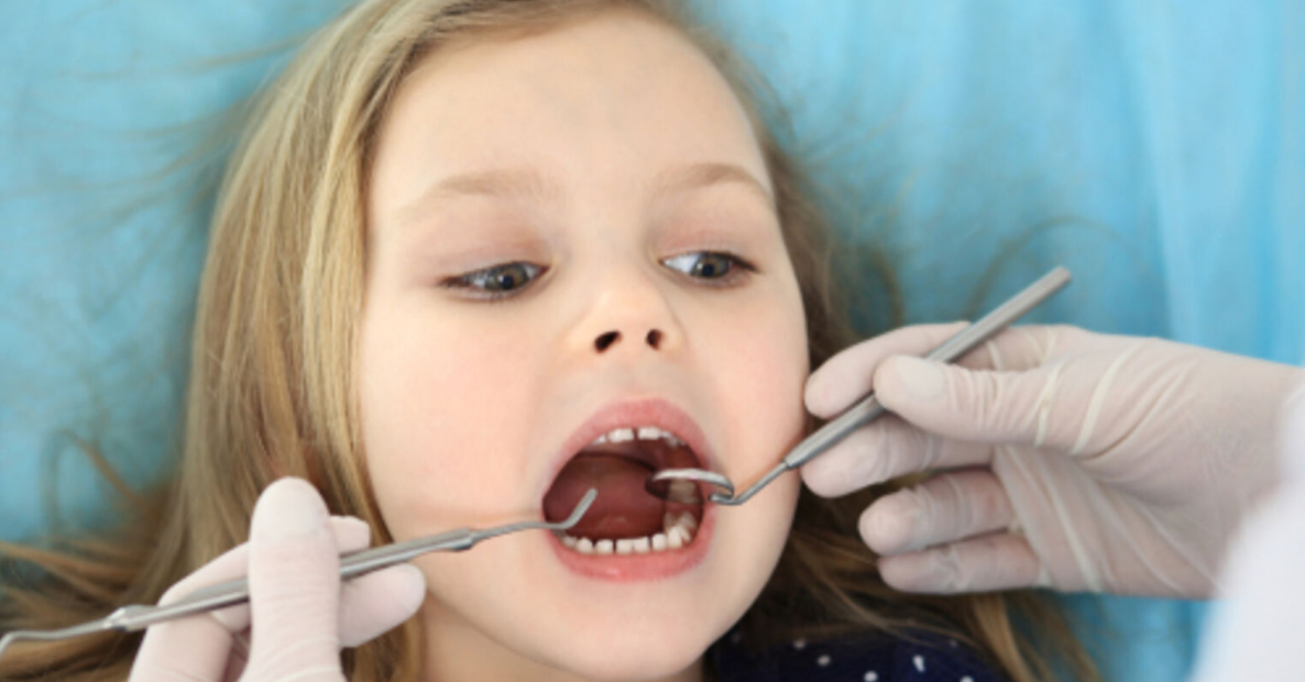 children dental Pretoria